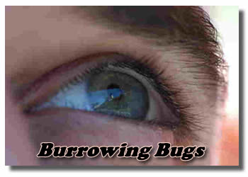 Burrowing Bugs Under My Eye