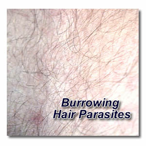 burrowing hair parasites