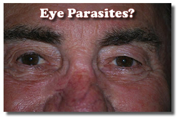 Husband With Eye Parasites