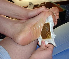 Japanese detox foot patches