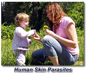 dealing with human skin parasites