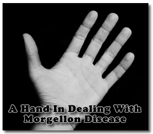 Morgellon Disease