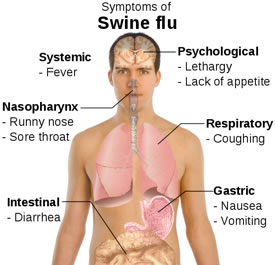 swine flu symptoms