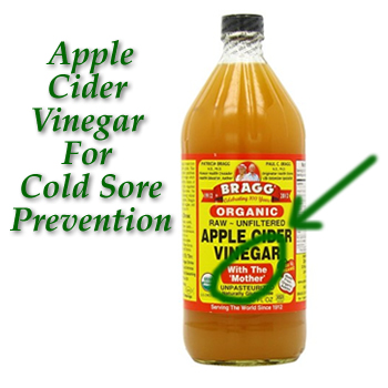 Vinegar and Cold Sores