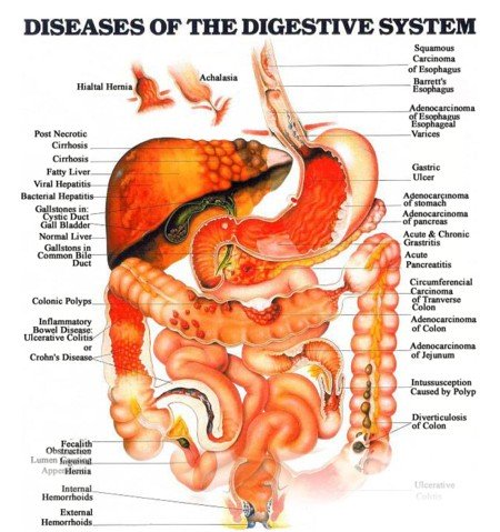diseases of the digestive system diagram