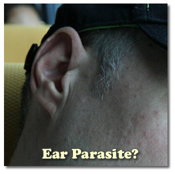 Question About Ear Parasites