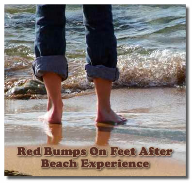 Mysterious red bumps on feet after being in the ocean and beach...