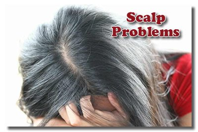 Dealing With Scalp Problems