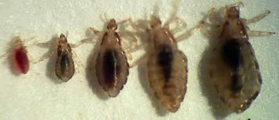 Picture of Body Lice (by Nutraceuticals)